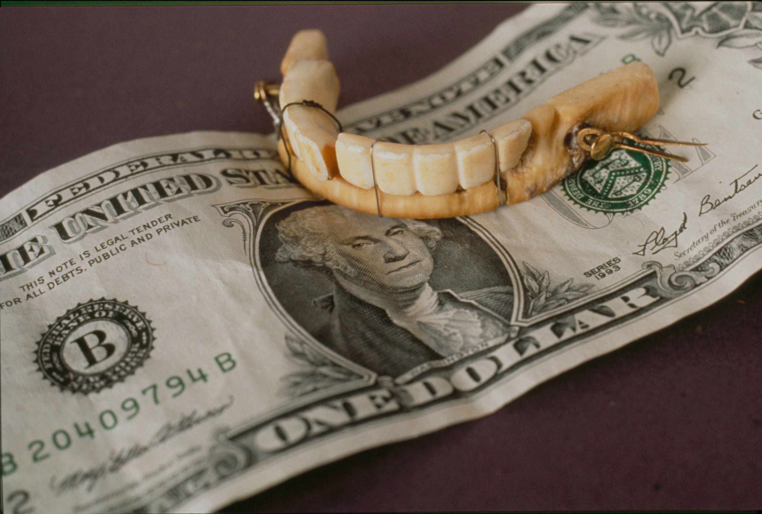 Топ-5 лучших средств для фиксации зубных протезов в 2021 году