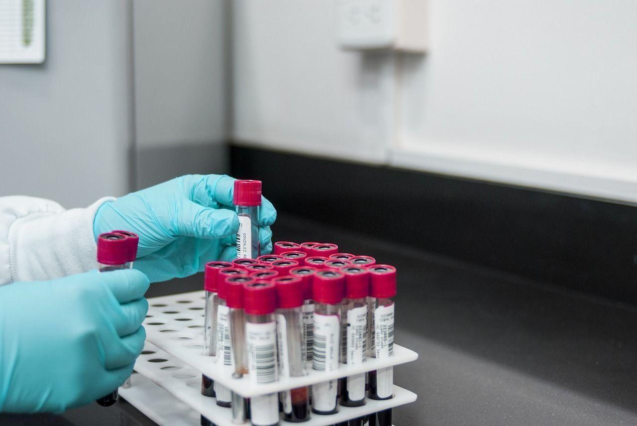 Лучшие медицинские лаборатории анализов в Екатеринбурге в 2021 году