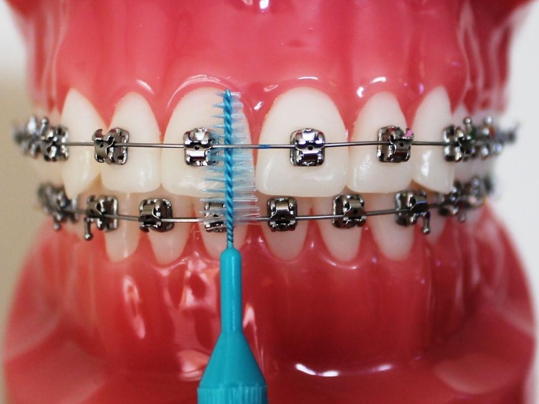 Рейтинг лучших зубных ершиков на 2021 год