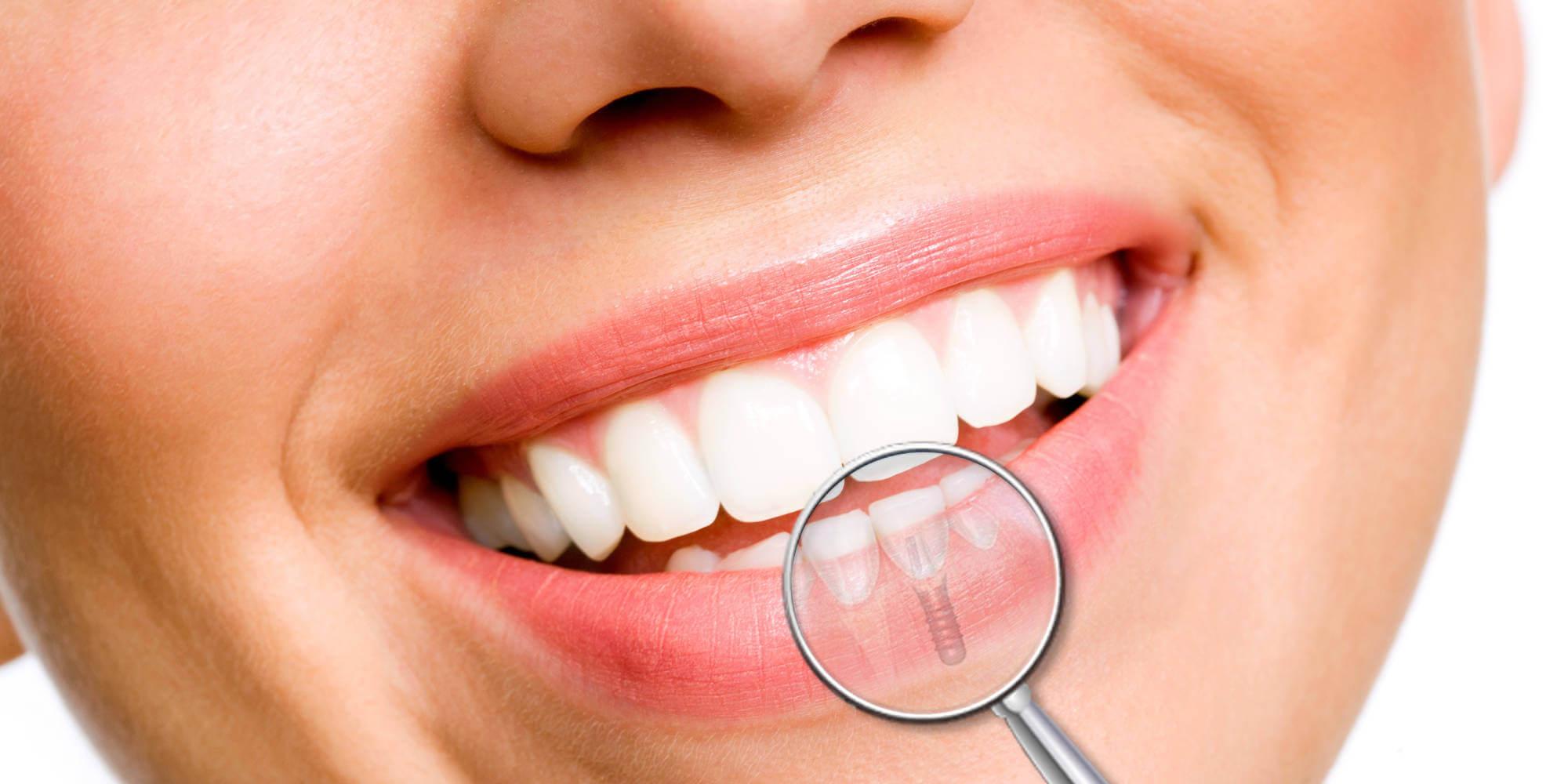 Рейтинг лучших клиник имплантации зубов в Самаре на 2021 год