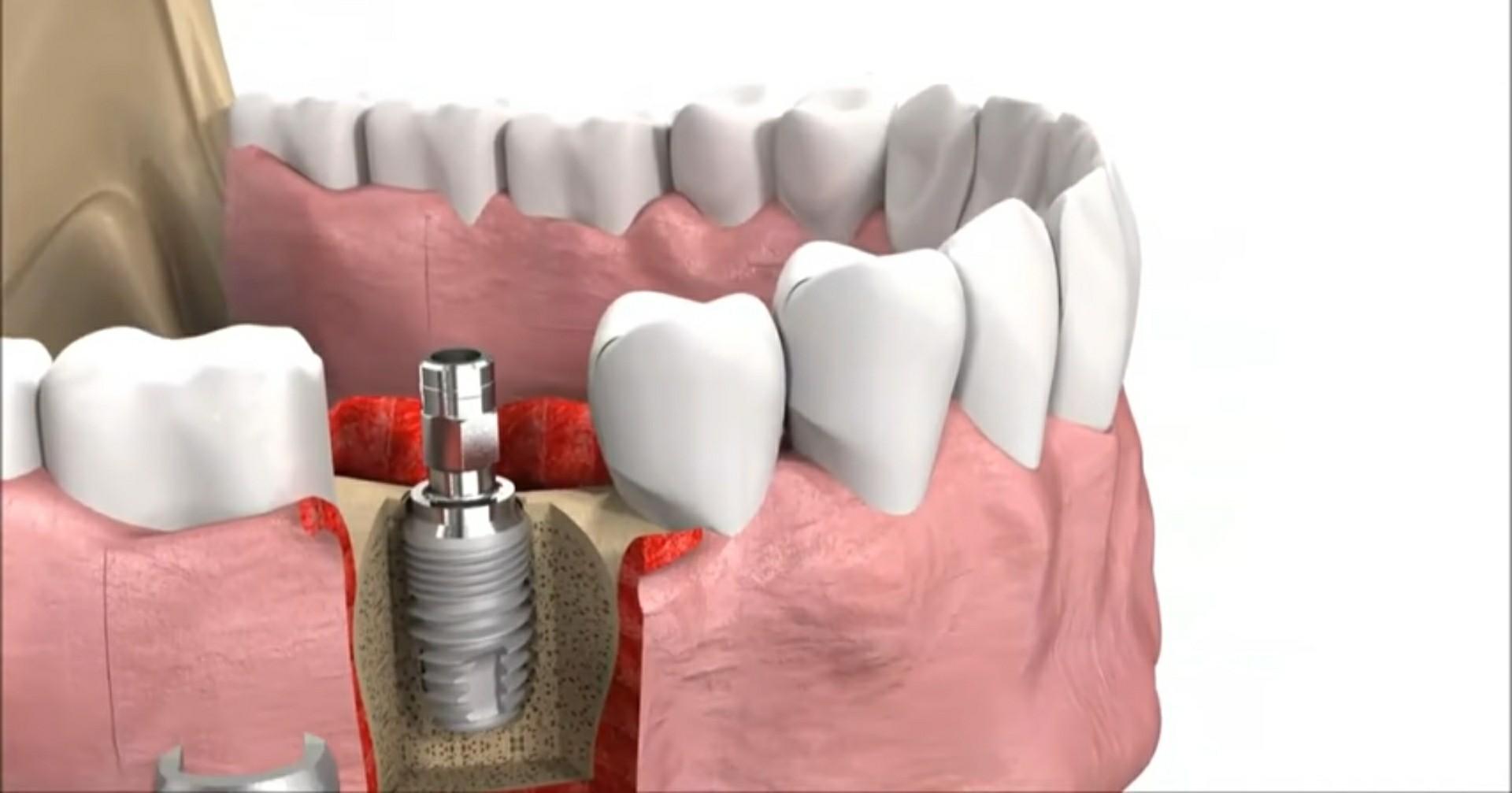 Рейтинг лучших клиник имплантации зубов в Казани на 2021 год