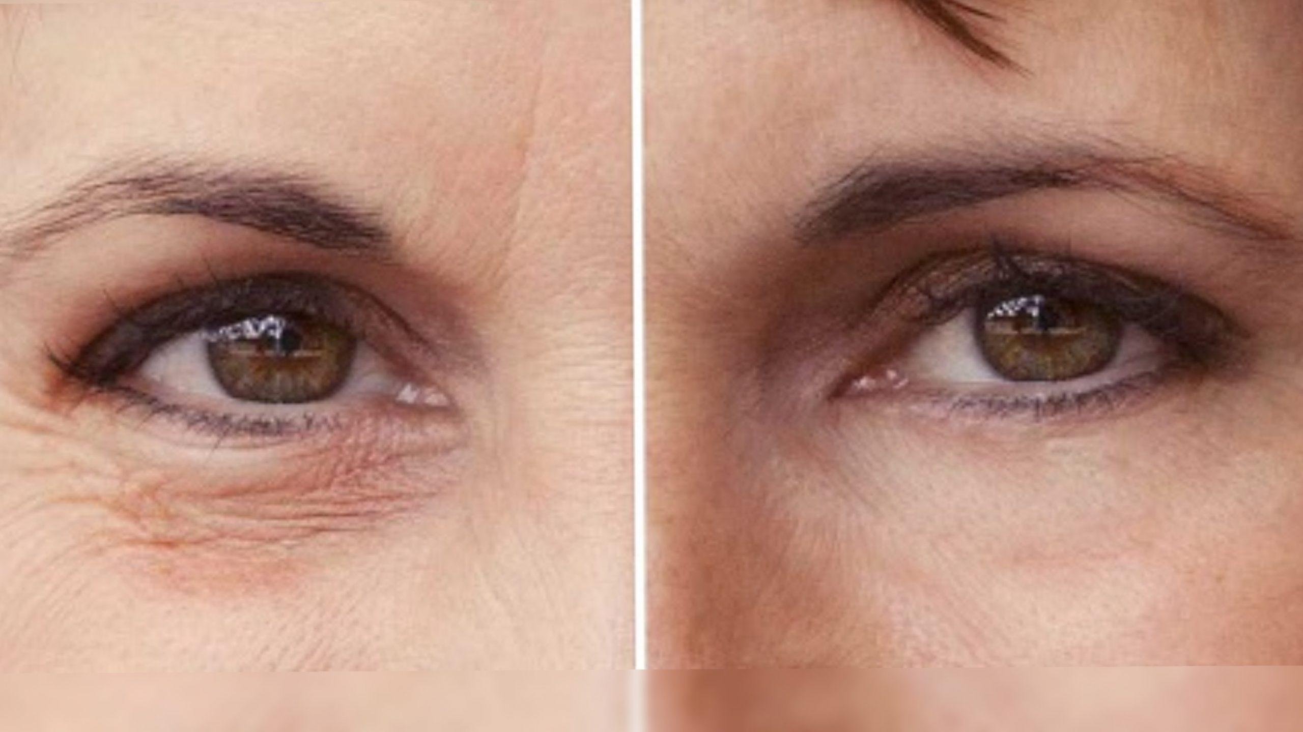 Рейтинг лучших кремов от морщин вокруг глаз на 2021 год